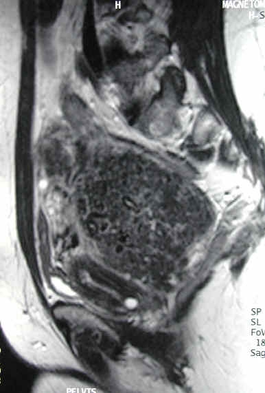 on MRI evaluation, the fibroid was shown to be peduncluated, or hanging on a stalk, behind the uterus